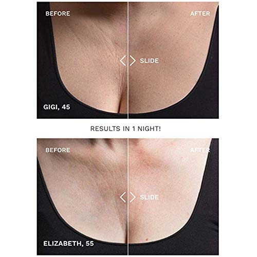 SiO Beauty SkinPad   Chest Anti-Wrinkle Pad 2 Weeks Supply   Overnight Smoothing Silicone Pad For Cleavage & Decollete Skin