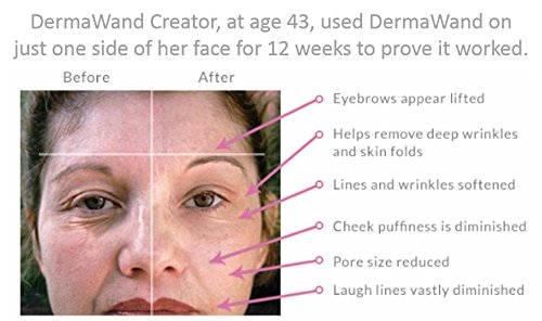 DermaWand & DermaBrilliance Systems - CLEANSES, EXFOLIATES, TIGHTENS and LIFTS
