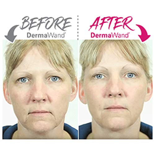 DermaWand PRO Microcurrent Skincare Device | The Anti-Aging Solution for All Skin Types