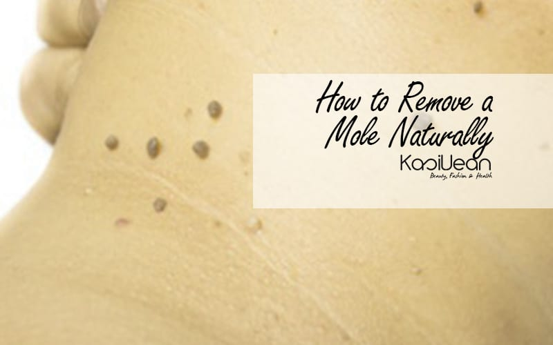 how to remove a mole naturally