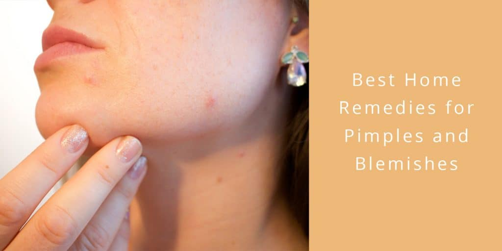 best home remedies pimples blemishes