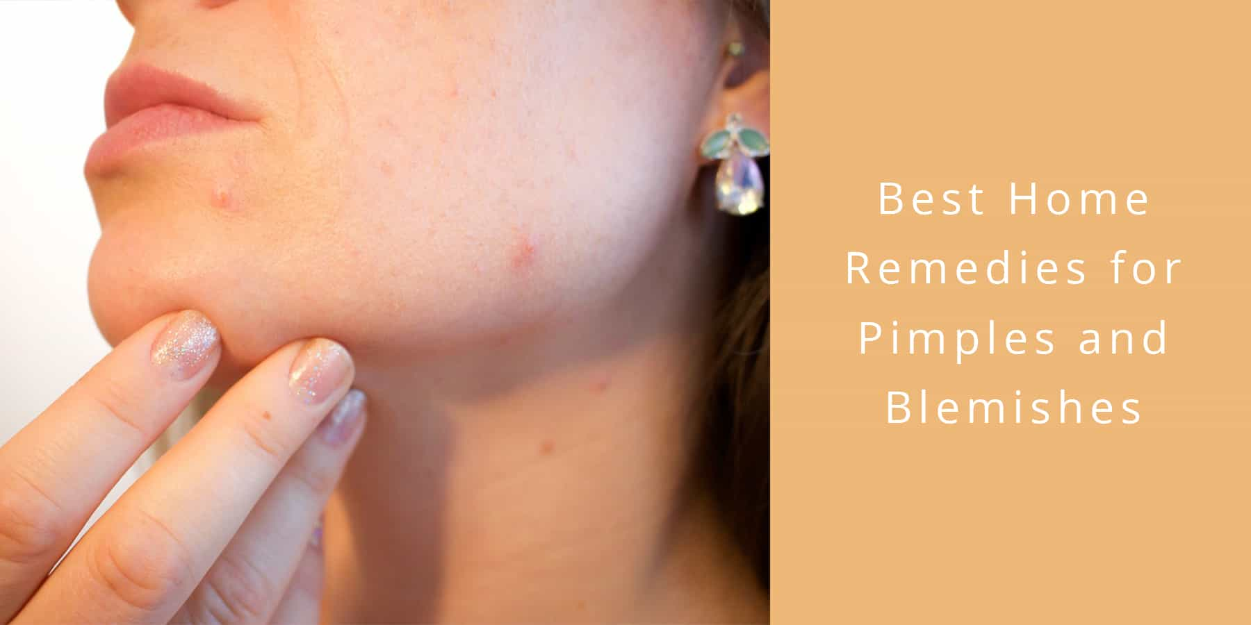what is the best remedy for pimples