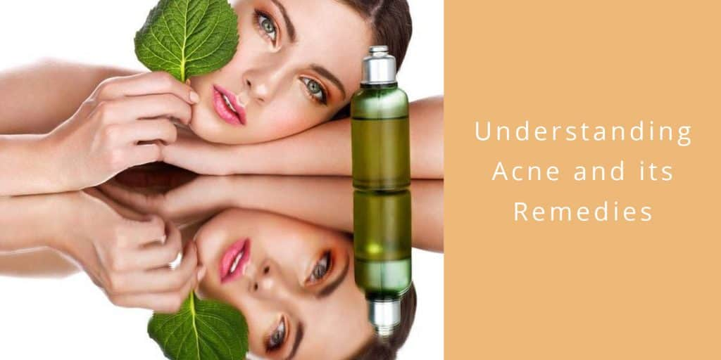 understanding acne remedies now